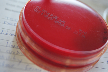 A close up image of 2 blood agar plates stacked on top of each other. No cultures can be seen. There is a page of handwritten notes underneath the plates.